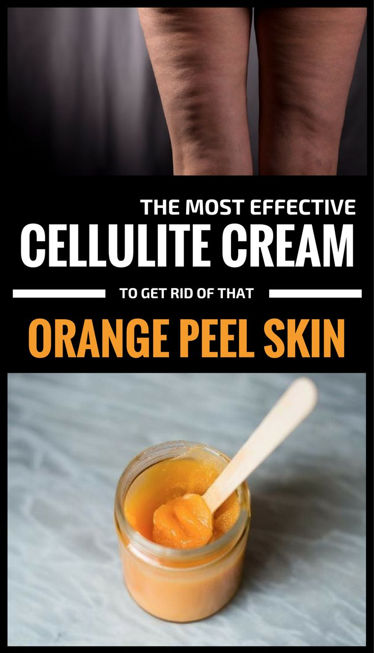 The Most Effective Cellulite Cream To Get Rid Of That Orange Peel Skin