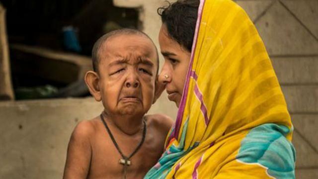 Su madre, de 18 años, vive desconsolada ante la enfermedad de su primer hijo