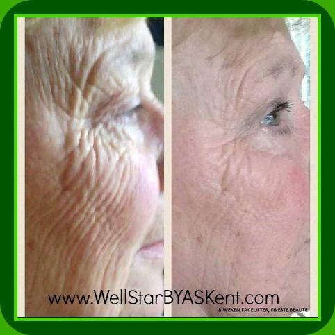 Lose Wrinkles Naturally with WellStar BYAS Kent http://www.WellStarBYASKent.com