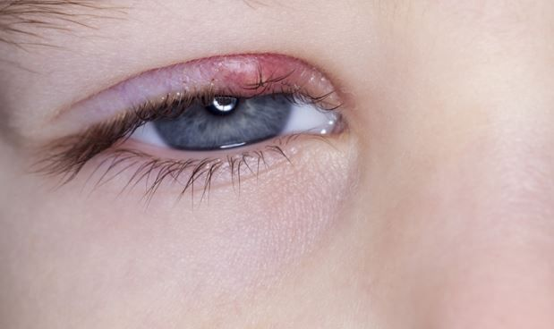 17 Best images about Eye Health on Pinterest | Sinus ...