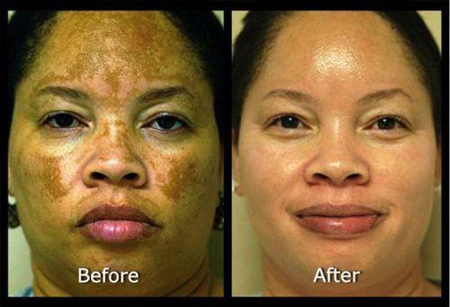 Best anti melasma solution - Kojic Acid, Hydroquinone creams, Tri-Luma cream, Tretinoin creams, Vitamin C serums