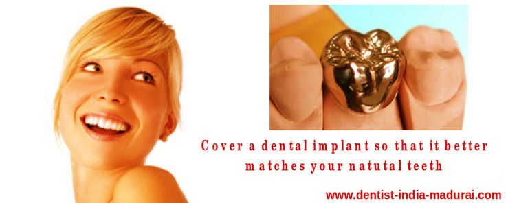 #MetalCrowns in #Madurai is an ideal option for #decayedtooth. For tooth shaping procedures & cost details click us http://goo.gl/1ZHT3b