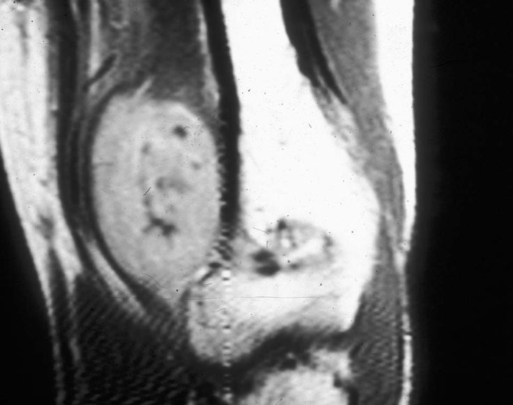 Image result for SYNOVIOMA SYNOVIAL SARCOMA