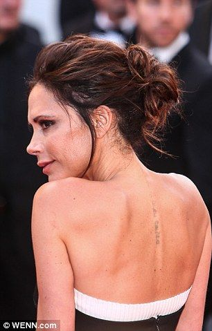 Celebrity Tattoo Removal