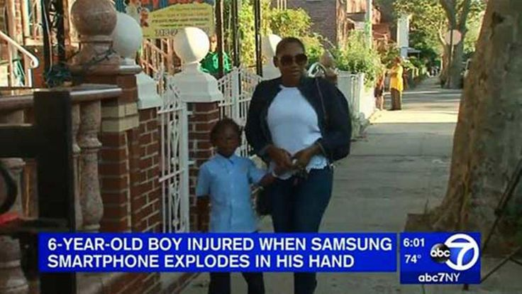 Young boy's hand suffers from 2nd degree burns from Samsung Galaxy Note 7 explosion