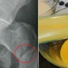 Рецепт целебного яичного ликера от остеопороза