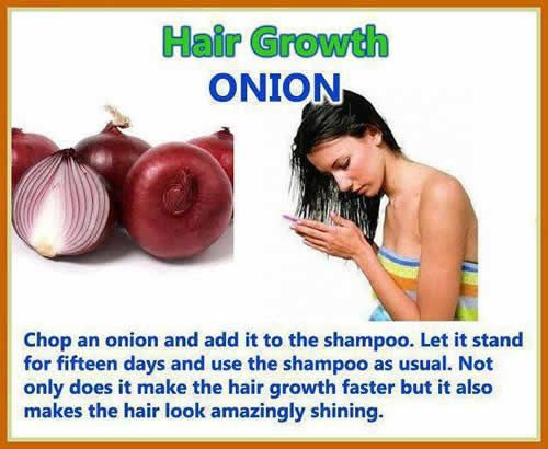 17 Best Images About Hair Alopecia Amp Hair Fall On