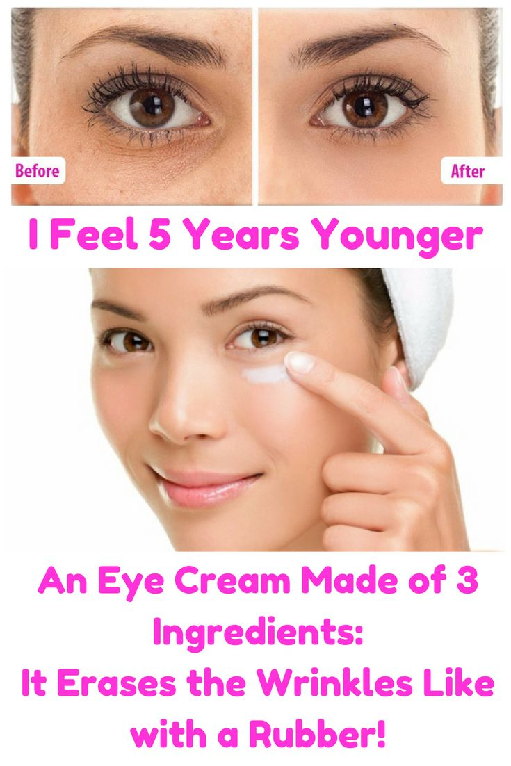 I Feel 5 Years Younger – An Eye Cream Made of 3 Ingredients: It Erases the Wrinkles Like with a Rubber!