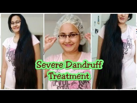 Severe Dandruff Treatment at Home -  CLICK HERE for The No. 1 Itchy Scalp, Dandruff, Dry Flaky Sore Scalp, Scalp Psoriasis Book! #dandruff #scalp #psoriasis Hey everyone! WELCOME TO MY CHANNEL!! My Channel is all about hairstyles for beginners. Previous Videos:- How to Cut Side Swept Bangs at Home || For Beginners:  Quick Long... - #Dandruff