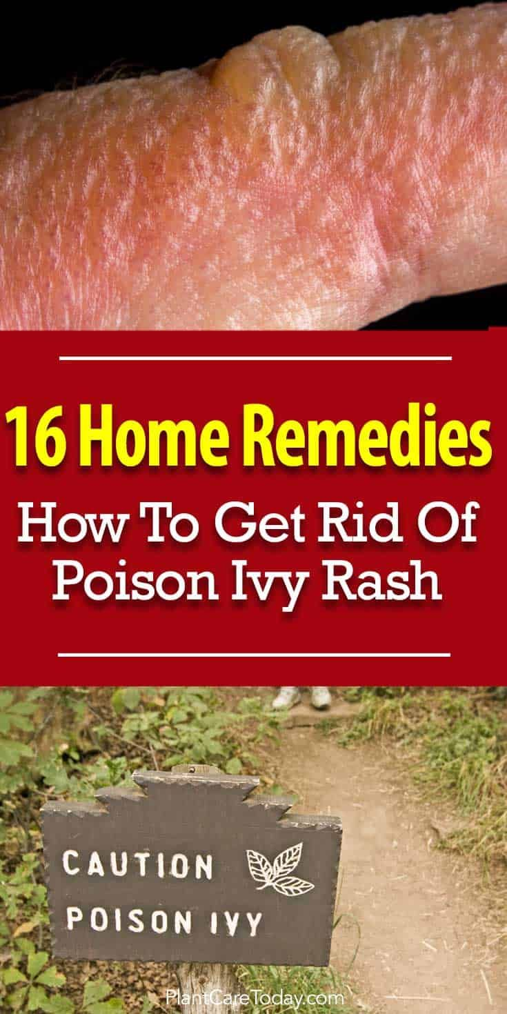 16 Home Remedies How To Get Rid Of Poison Ivy Rash Poison Ivy
