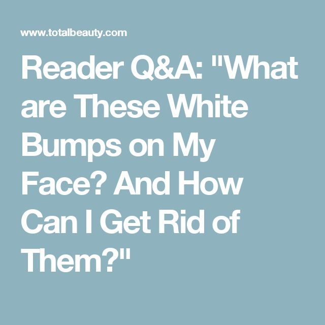 "Reader Q&A: ""What are These White Bumps on My Face? And How Can I Get Rid of Them?"""