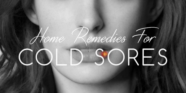 home-remedies-for-cold-sores