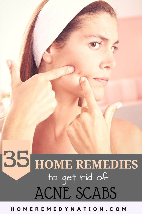 35 Efficacious Home Remes To Get Rid Of Acne Scabs