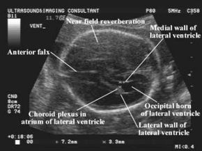 Fetal Anomalies Associated With Breech Presentation