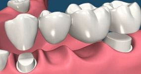 dental bridge cost : total number of units