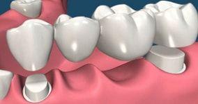 dental bridge cost : total number of units