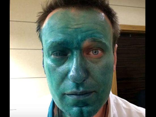 «Зеленка Навального» засохла в полицейском архиве http://apral.ru/2017/05/03/zelenka-navalnogo-zasohla-v-politsejskom-arhive/  После нападения с зеленкой, из-за которого Алексей Навальный на 80% лишился зрения на один глаз(об этом он пишет в своем [...]