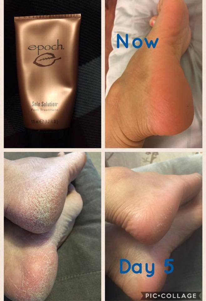 say goodbye to dry cracked feet