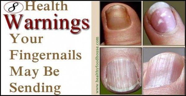 5. Curved Inward Or Spoon Shaped Nails: This disorder results with the nail curve going upwards and the nail bed is lower and impacted. Such symptoms can mean: Iron deficiency Heard disease Hypothyroidism Hemachromatosis, which is a liver disorder caused by the body absorbing too much iron In order for the nail go retrieve its […]