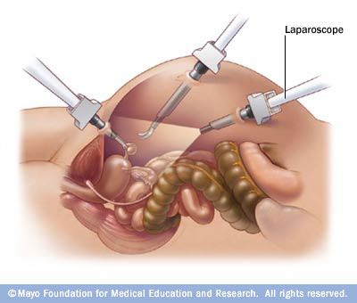 Laparoscopic Oophorectomy. The oophorectomy (ovary removal surgery) is performed through use of a laparoscope, a far less invasive procedure compared to traditional surgeries.