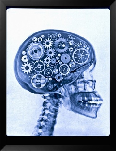 X-ray of Skull with Gears by Thomas Lang. Framed Art Print from Art.com.