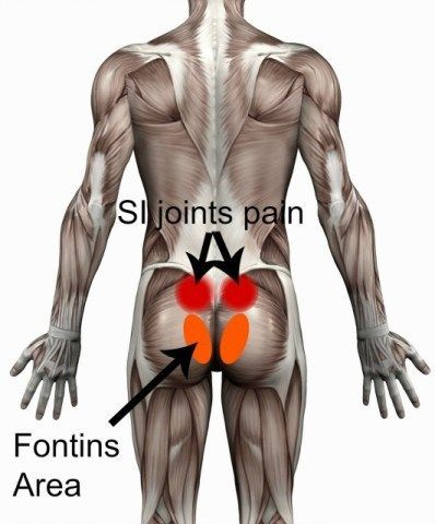 SI joints and fontins area