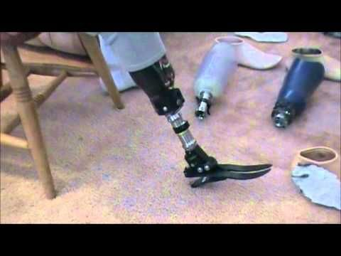 Prosthetic Leg Types | prosthetic leg assembly/ Echelon , Perfect Stride,Ultra Stride,flex ...