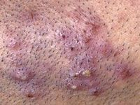 """Pseudofolliculitis barbae is commonly known as """"shaving rash"""" or """"razor bumps."""" It is a foreign-body inflammatory reaction surrounding ingrown facial hair, which results from shaving. The problem occurs more commonly in people who have curly hair."""