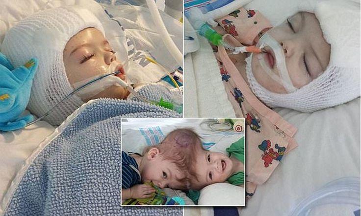 В США успешно разделили близнецов-краниопагов (12 фото)  http://nlo-mir.ru/chudesa-nauki/48189-bliznecovkraniopagov.html