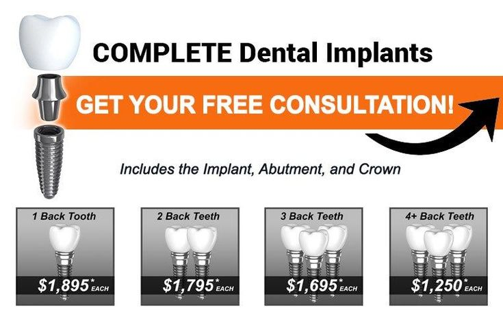 Delhi Dental Implants: Giving Back Smiles And Ability To Munch Food Like Never Before  Are you looking to find low cost dental implants? There is really a need to do effective research to access the low cost dental implants. In this article you will find tips and tricks to getting the top deals.  dental implants cost In most cases the implant looks better are members of a persons smile. It is specifically built to match at least the surrounding teeth. The color size and shape are…