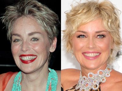 Celebrity teeth: before and after smile makeovers | BT