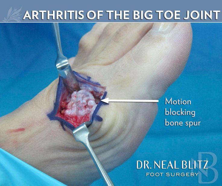Psoriatic Arthritis Symptoms *** You can get additional ...