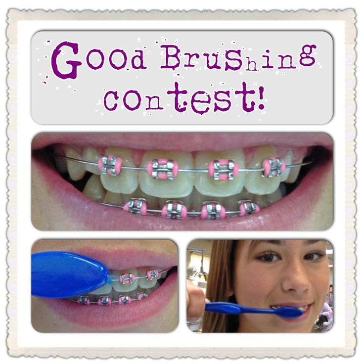 """If you are a super brusher and flosser, you will be entered in our """"Good Brushing Contest"""" at every orthodontic visit."""