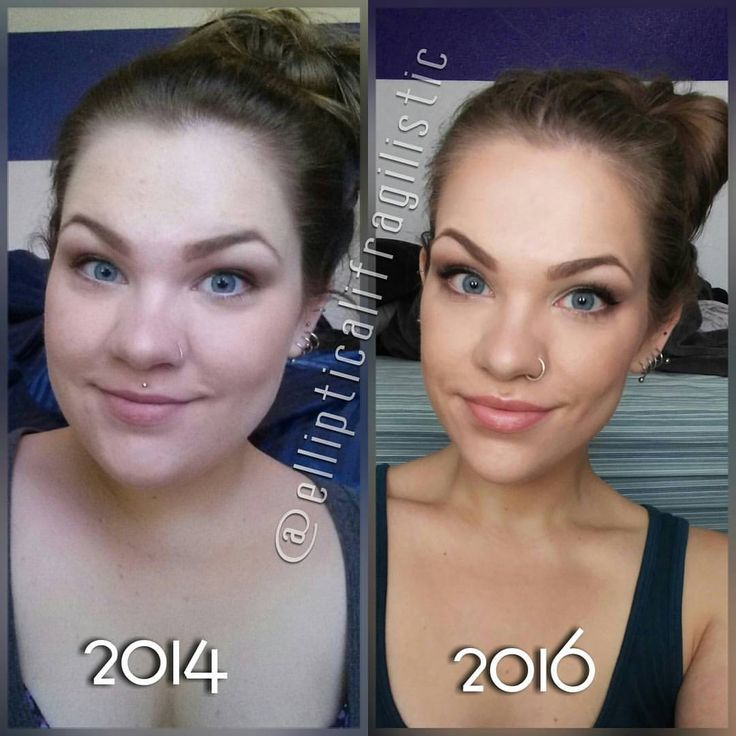 before and after weight loss face