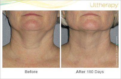 Neck Before & After (0024-0086W) #1 - Side-by-Side | Ultherapy