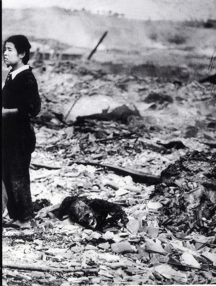 One of the casualties from the atomic bombing of Hiroshima