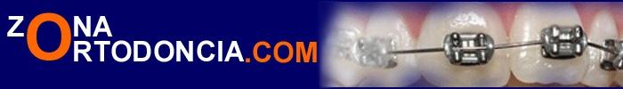 En este apartado podrás consultar diferentes aparatologías utilizadas en ortodoncia. Como el abanico de aparatos es muy amplio, hemos optados por exponer los más habituales.
