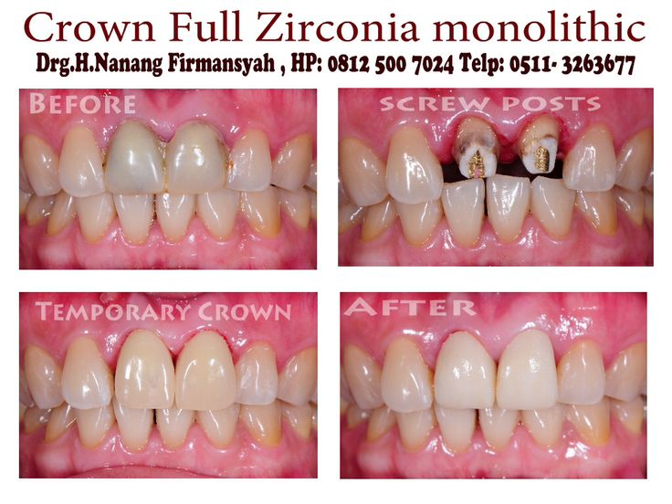 Crown Full Zirconia Monolithic