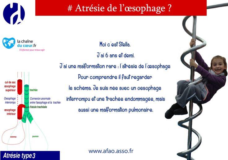 SQUIZ SOUTIENT L'AFAO (Association Française de l'Atrésie de l'Oesophage) http://squiz-france.tumblr.com/post/138472054374/squiz-soutient-lafao-association-française-de #squiz #gourdereutilisable #responsable #afao #atresie