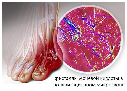 А Вы знаете? Что такое сочетание ингредиентов снимет воспаление в любой части тела! Огуречный сок-это напиток, который понижает температуру тела. Он помогает выводить мочевые агрессивные соли из суставов. Ингредиенты, входящие в его состав успешно выводят вредные токсины. В сочетании с сельдереем и имбирем успокаивает воспаление в любой части тела. Этот рецепт, который может помочь вам