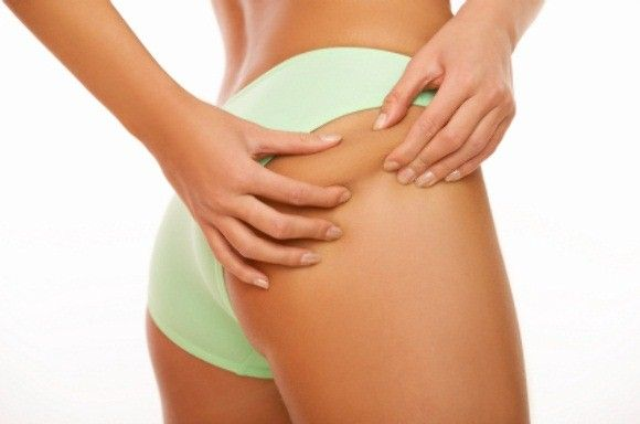 Cellulite Removal Center is here to help you with cellulite. Cellulite creams, lotions, treatments and diets, we have it all. #Cellulite #Removal #Center