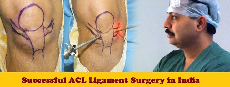 Why to Choose Tour2India4Health for ACL Ligament Surgery in India?