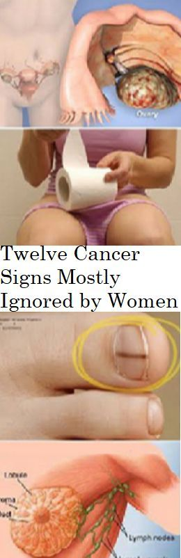 Twelve Cancer Signs Mostly Ignored by Women....
