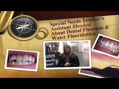 Special Needs Teacher's Assistant Shocked About Dental Fluorosis and Wat...