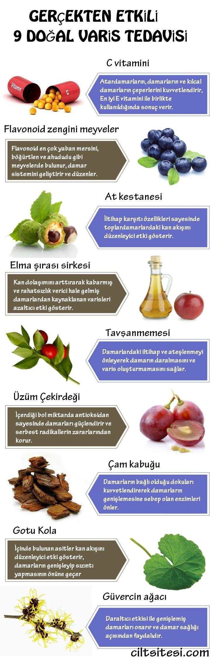 Doğal ve tamamen bitkisel varis tedavisi yöntemleri.