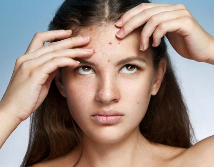 5 Effective Ways To Get Rid Of Forehead Pimples