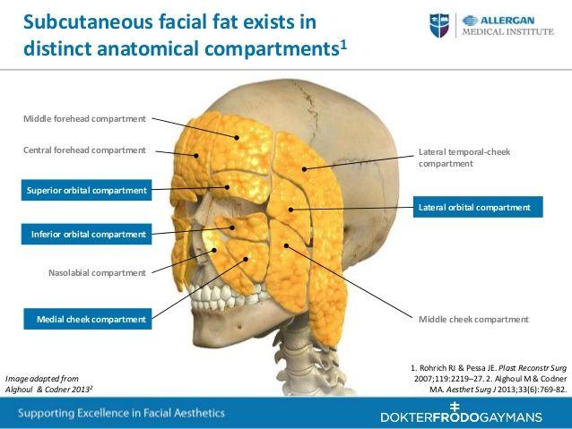 Tri pad facial bones