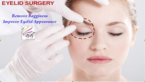 Eyelid surgery, or blepharoplasty, is a surgical procedure to improve the appearance of the eyelids.  Surgery can be performed on either the upper and lower lids, or both. Be Beautiful, Improve Your Eyelid Appearance !!!!