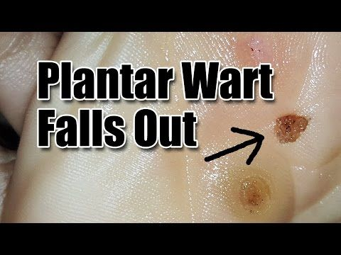 How To Remove Plantar Warts Naturally: No Doctor, No Meds, No Surgical Procedure - Yum Yucky