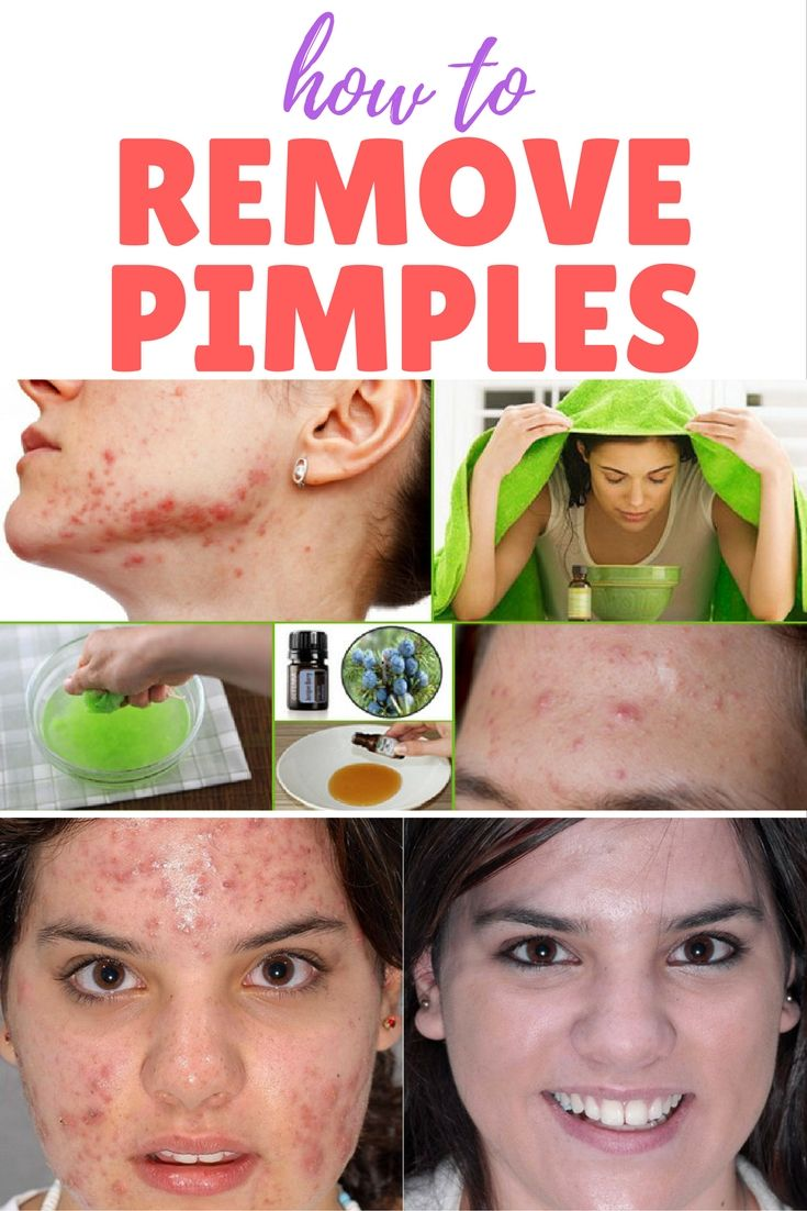 How to Remove Pimples and Acne Overnight Naturally